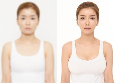 before_after_breast3