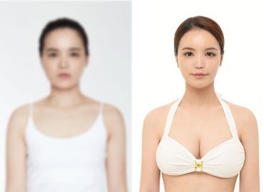 before_after_breast1