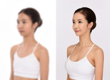 before_after_breast4