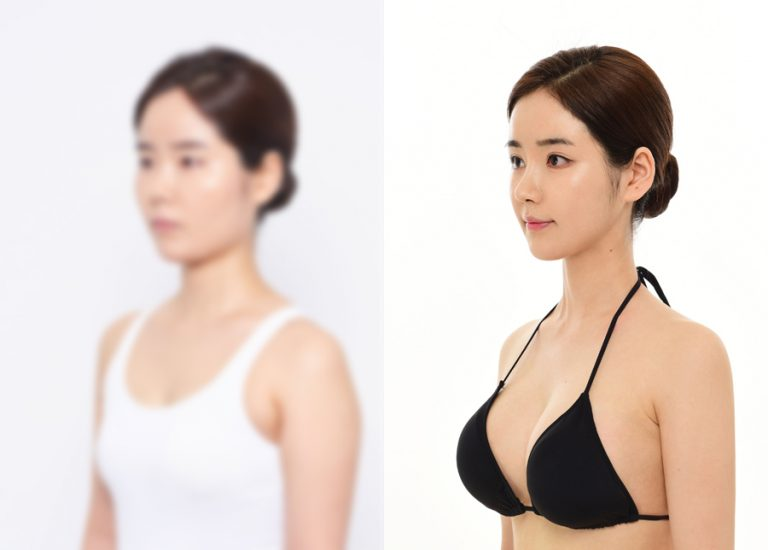 before_after_breast6