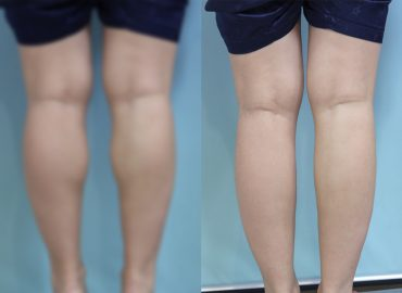 before_after_body1