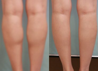 before_after_body3
