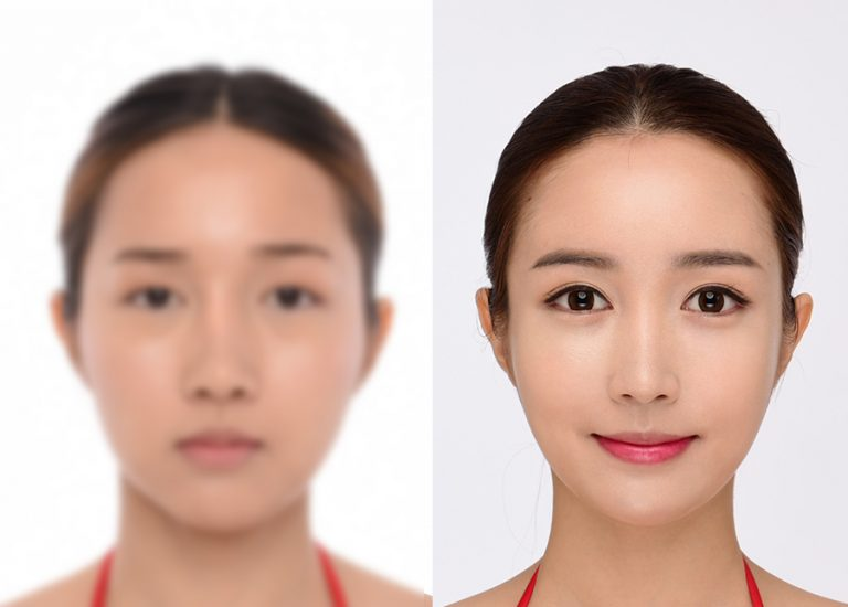 before_after_face6