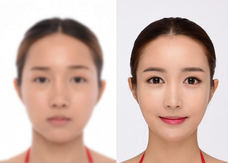 before_after_eye4