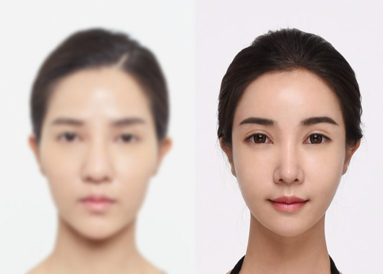 before_after_eye2