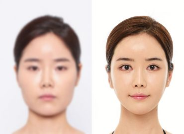 before_after_face5