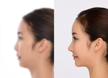 before_after_nose3