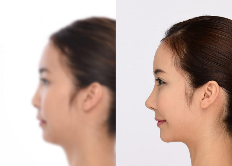 before_after_nose1