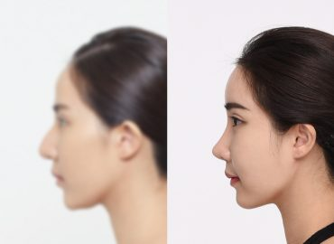 before_after_nose2