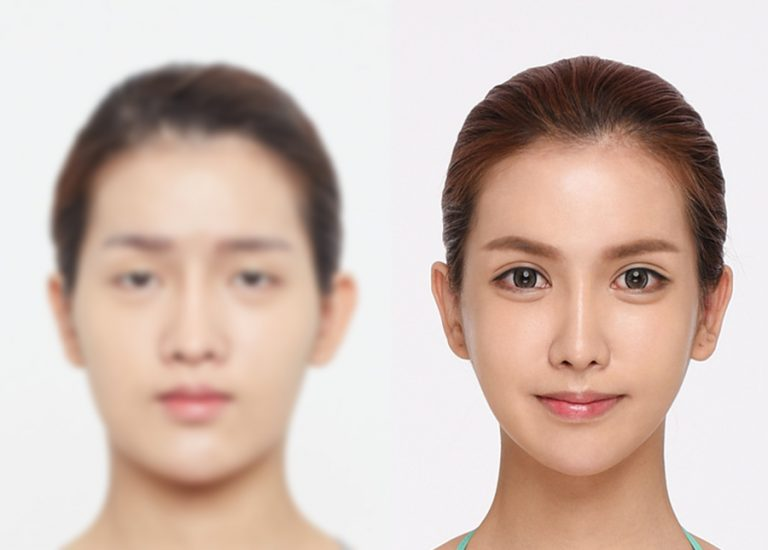 before_after_eye6
