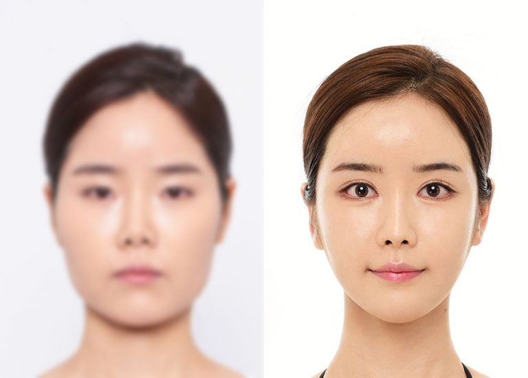 before_after_eye5