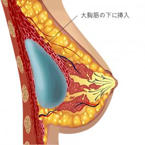 水玉豊胸術5