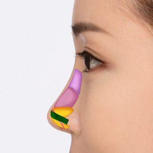 長い鼻(矢鼻)4