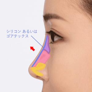 隆鼻術_03